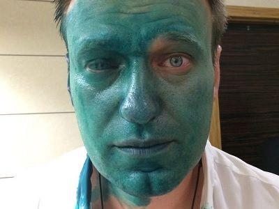 Навальный может потерять глаз из-за зеленки спрожигающим сюрпризом