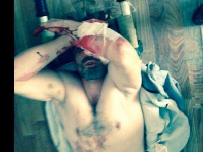 Хабиб Нурмагомедов продемонстрировал последствия пыток в милиции Дагестана